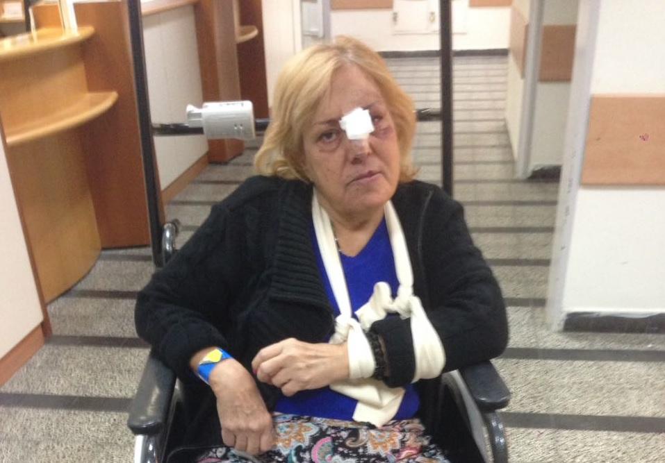 מחדל: אישה מבוגרת מעדה ונחבלה בגלל בור במדרכה