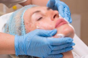 פנים מטושטשות של אישה בניתוח