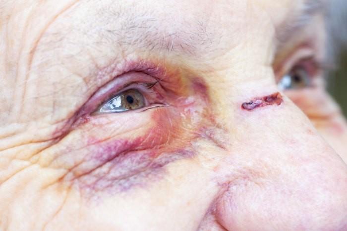 אישה קשישה מאשדוד שחטפה מכות מצעירים