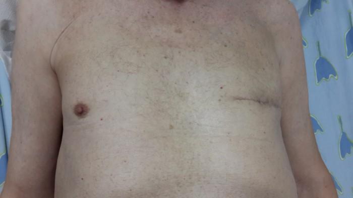 ניתוח לא שגרתי: גבר כבן 70 מאשדוד עבר ניתוח להסרת גידול סרטני בשד