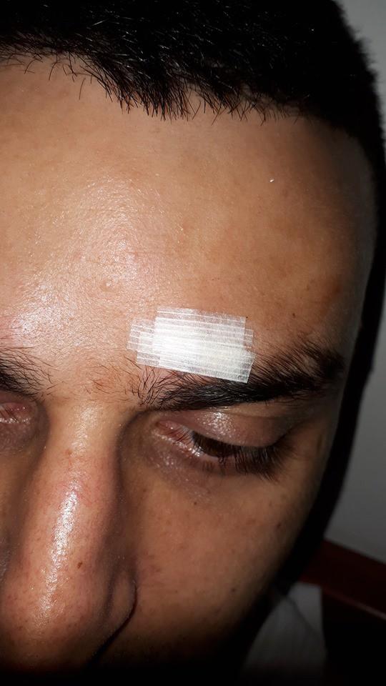 בעלה של חנה גור הותקף בדרך למקלט